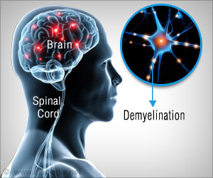 Research Examines Effect of Immunosuppressant on Central Nervous System Disorder