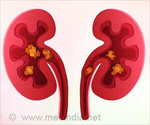 Kidney Stones Linked With Bone Problems