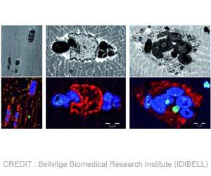 Myoglobinopathy: New Muscular Disease Identified
