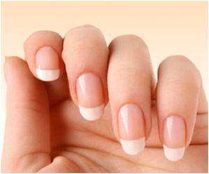 Nail-biting may be Included as a Symptom of Obsessive Compulsive Disorder