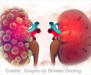 Nanotechnology Helps Treat Acute Kidney Injury