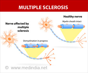 Surges In Multiple Sclerosis Activity Now Predicted By A Blood Test