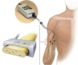 Prosthetic Arm That Detects Nerve Signals Developed