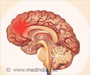 Brain Stroke: Every 20 Seconds, 1 Indian Suffers