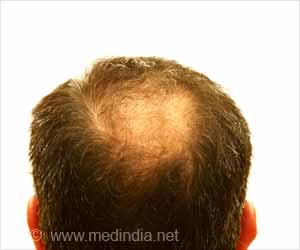 Immunosuppressants Side Effect May Benefit People With Hair Loss