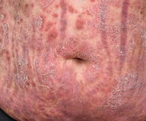 Chronic Psoriasis Gets Breakthrough Targeted Therapy With Minimal Side Effects