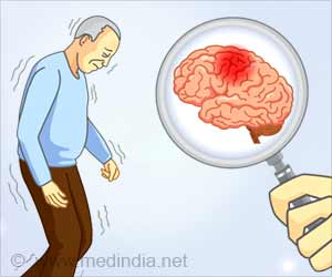Immune Cells Linked to Parkinson's Disease Onset