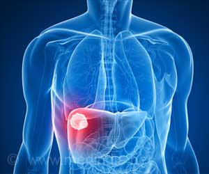 Chronic Inflammation May Promote Liver Cancer