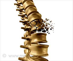 Study Highlights the Under-Reporting of Osteoporotic Vertebral Fractures