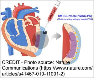 New Dual Stem Cell Therapy Holds Promise for Heart Regeneration