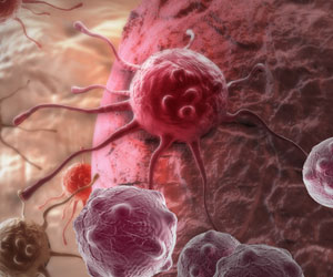 New Effect Against Cancer Identified in Cancer Drug