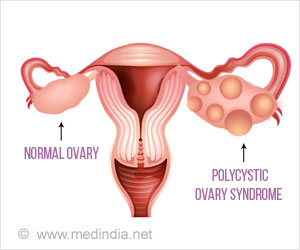Insulin Resistance And Polycystic Ovary Syndrome Share a Link