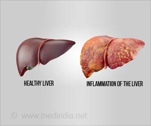 Excessive Iron in Body may Cause Liver Damage