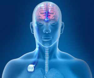 Nerve Stimulation in Vagus Nerve Restores Consciousness in Man After 15 Years