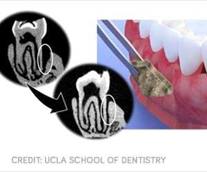 New Membrane Helps Regenerate Tissue and Bone for Gum Disease Treatment