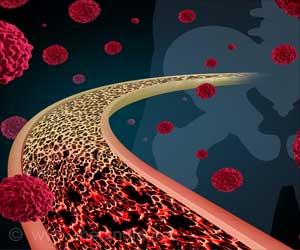 New Therapeutic Target for Ewing Sarcoma Identified