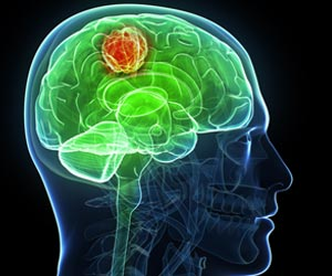 Breakthrough in Drug Development & Personalized Medicine for Brain Tumor
