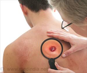 Allergic Reaction – The Body's Protection from Skin Cancer