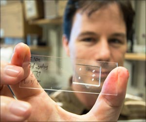 Scientists Develop New Technology That Sorts Cells by Stiffness May Help Spot Disease