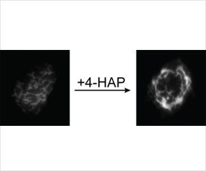 New Cancer-Fighting Strategy from Johns Hopkins Would Harden Cells To Prevent Metastasis
