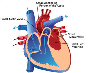 Hypoplastic Left Heart Syndrome, a Critical Condition in Babies