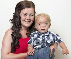 Baby Boy Resembles a Pinocchio With Brains Growing On His Nose
