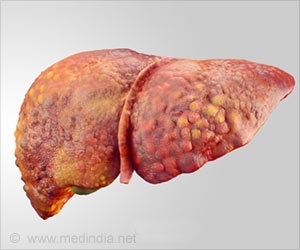 Gastrointestinal Hormones may Help Ease Symptoms of Liver Diseases