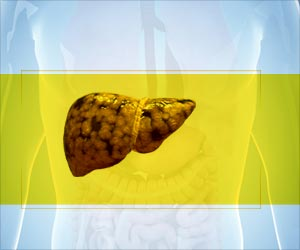 Diabetes Patients More Likely to Develop Deadly Liver Disease