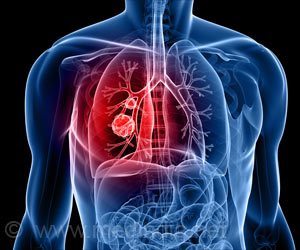 New Technology Lights Up Lung Cancer Cells