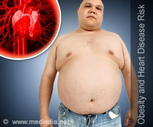 Heart Disease Strikes in Earlier for Overweight, Obese Adults