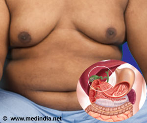 Obese Children at Higher Risk of Gallstones