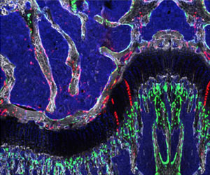 Stem Cells Capable of Regenerating Bone and Cartilage Identified