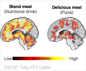 Eating Triggers Endorphin Release in The Brain