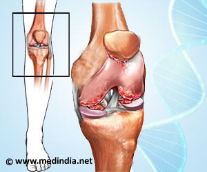 59-Year-Old Woman Cured of Osteoarthritis With Gold Knee Implant in India