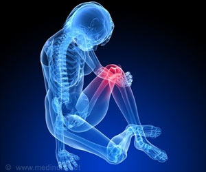 Prolactin Lowers Arthritis Inflammation