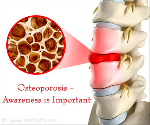 Osteoporosis and Mitochondrial Damage Linked