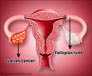 Spread of Ovarian Cancer can be Slowed With Genetic Pathway