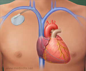 Patients Try Out Pacemaker Outside the Skin Before Choosing Permanent Implant