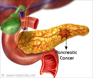 Pancreatic Cancer can be Diagnosed by Analyzing Saliva for Presence of Specific Bacteria