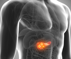 Blood Pressure Drug Improves Outcomes in Pancreatic Cancer