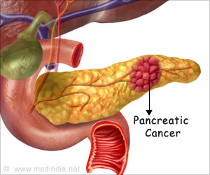 Promising Pancreatic Cancer Target Identified