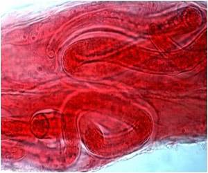Genome of Parasitic Worm Cracked