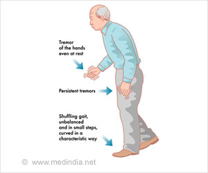 Easy Method To Test Muscle Function Decline in Parkinson's Disease