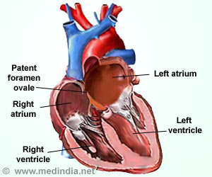 Healthy Heart Important for Proper Brain Functioning: Study