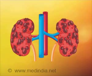 New Meta-analysis Aims to Improve Outcomes in Patients With Severe Chronic Kidney Disease (CKD G4)