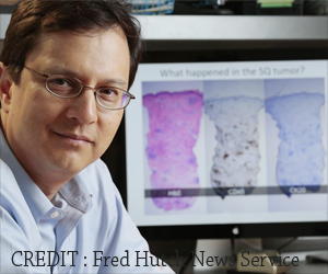 New Insights to Improve Immunotherapy For Certain Cancers