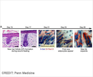 New Process To Heal Wounds Without Scars