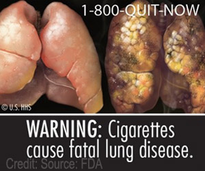 Graphic Pictorial Warnings on Cigarette Packs Can Significantly Help Reduce Smoking Death Rate