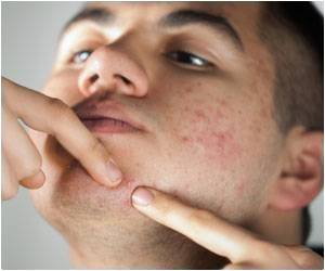 Dermatologists Share Tips on How to Treat Boils and Styes