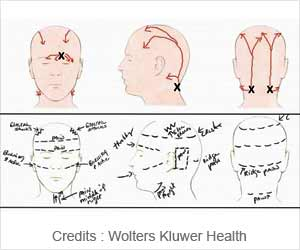 Pain Sketches Can Help Migraine Patients in Surgery